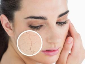 dry-skin-face